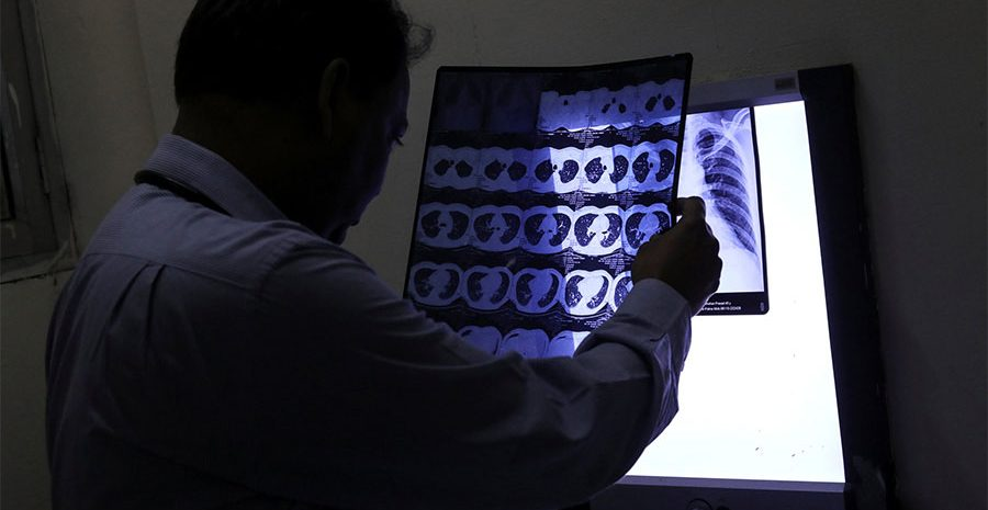 Radiologist looking at medical image