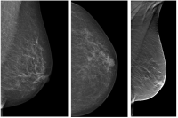 Interval Cancer Rate Lower-with-Digital Breast Tomosynthesis